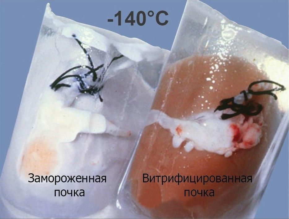 Сравнение замороженной и витрифицированной почек кролика